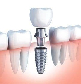 Animation of dental implant tooth replacement process