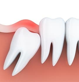 Animation of impacted tooth
