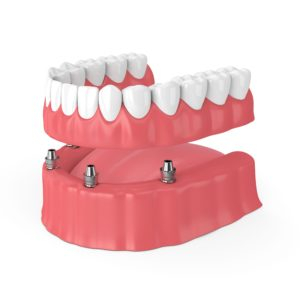rendering of implant-retained dentures