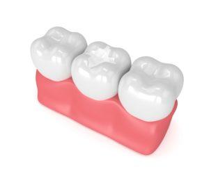 rendering of dental sealant