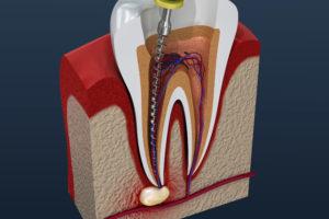 rendering of an endodontic procedure