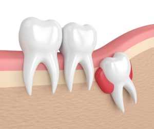 rendering of an impacted tooth