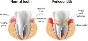 good vs bad tooth comparison