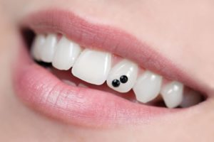 tooth jewels