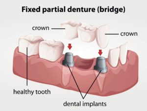 Example of Dental Implant Bridge
