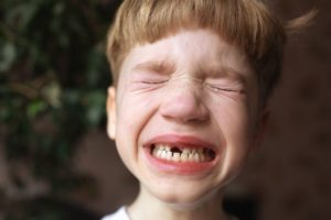 little boy upset after losing tooth